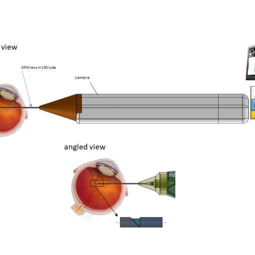 Oční endoskop